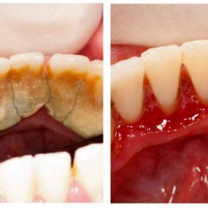 1 Класний спосіб позбутися від зубного каменю самому і вдома!