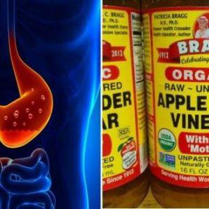 1 Столова ложка яблучного оцту протягом 60 днів може позбавити вас від цілого ряду проблем зі здоров`ям!