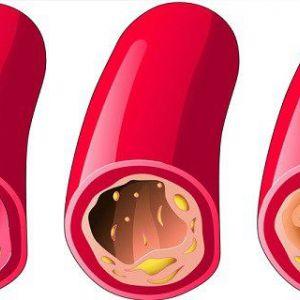 10 Продуктів, які допоможуть очистити артерії