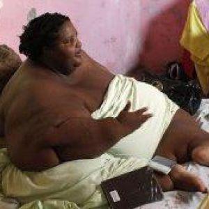 300-Кілограмова пацієнтка спантеличила хірургів
