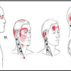 5 Тригерів, які є причиною головного болю, про які ви не знали