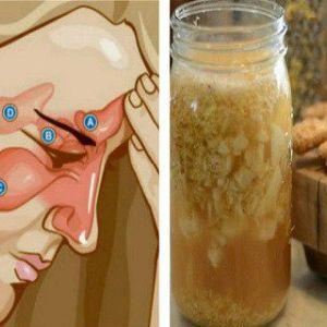 Змішайте ці два інгредієнти і попрощайтеся з синуситом, ринітом, на грип і багатьма іншими захворюваннями!