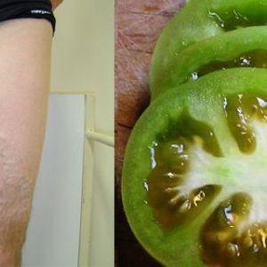 А ви знаєте, що зелені помідори можуть допомогти в лікуванні варикозного розширення вен?