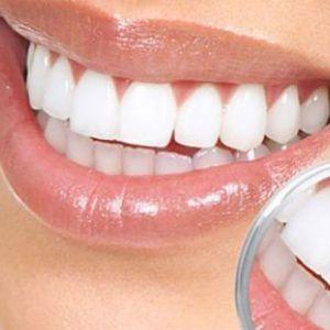 Як видалити зубний наліт краще, ніж у стоматолога?