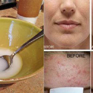 Попрощайтеся зі зморшками і в`ялою шкірою обличчя, застосовуючи цю потужну суміші!