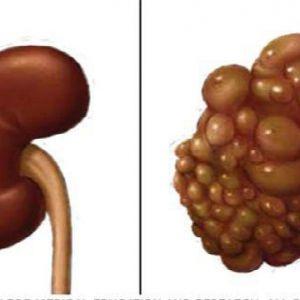 Якщо ви хочете захистити нирки, не робіть цього