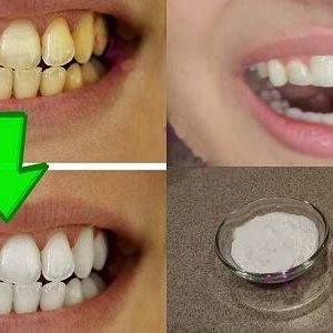 Гарантоване відбілювання жовтих зубів менш ніж за 2 хвилини!