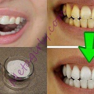 Гарантовано! Відбілити жовті зуби менш ніж за 2 хвилини!