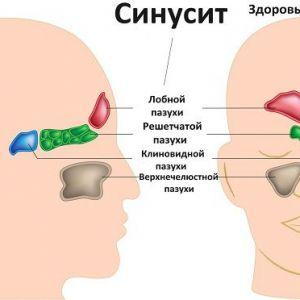 Позбавтеся від запалення носових пазух протягом 20 секунд за допомогою цього простого методу, і всього одного інгредієнта!