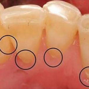 Позбавтеся від зубного нальоту, зубного каменю і кровоточивості ясен легким безболісним способом!