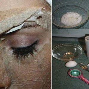 Ця маска допоможе вам назавжди позбутися від вугрів на обличчі!