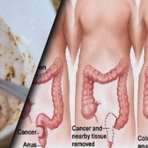 Ці два інгредієнта виведуть з товстої кишки кілограми токсинів!