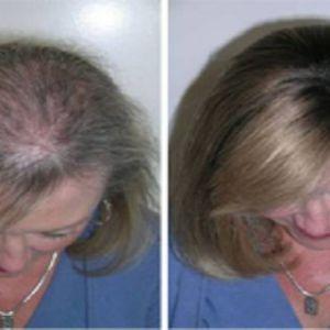 Це масло відмінно підходить для зміцнення волосся, вій і брів