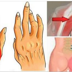 Цей маловідомий простий трюк допоможе вам боротися з артритом, радикулітом і болем в спині краще, ніж будь-які знеболюючі!
