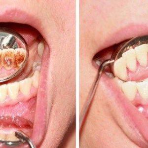 Як позбутися від зубного нальоту і захворювання ясен без дорогих методів лікування