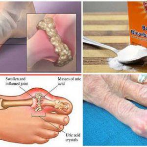 Як ефективно запобігти подагру і біль в суглобах шляхом видалення сечової кислоти з організму!