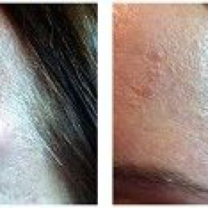 Як лікувати шишки на шкірі, відомі як ліпоми? Легкий спосіб в цьому відео.