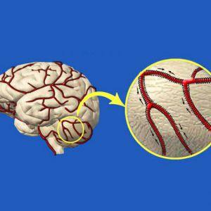 Як очистити судини головного мозку. Потужні рецепти народної медицини!