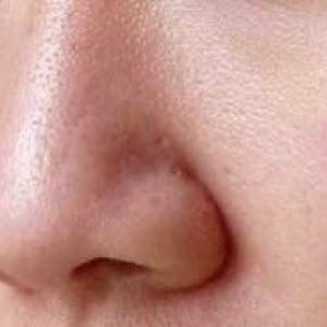Як побороти широкі пори на обличчі
