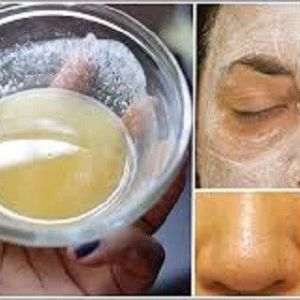 Як застосовувати харчову соду для відмінного стану шкіри обличчя!