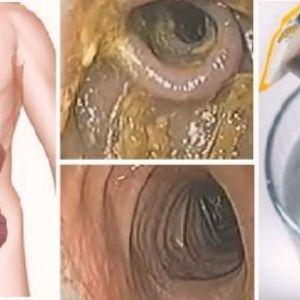 Як за 48 годин вивести з печінки, товстої кишки і нирок всі токсини і жир