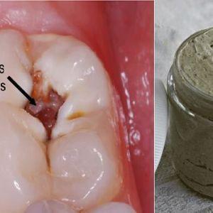 Лікування карієсу, захворювання ясен і відбілювання зубів за допомогою цієї саморобної пасти!