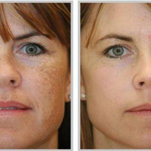 Найкраще природне і найбільш ефективне природний засіб для того, щоб позбутися від пігментних плям на обличчі