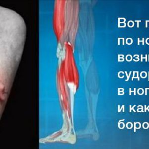 Ось чому ночами виникають судоми в ногах і як з ними впоратися!