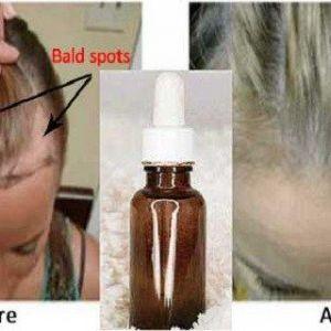 Нанесіть кілька крапель сироватки і ваше волосся відросте зовсім непомітно