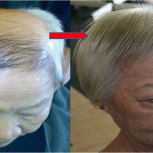 Нанесіть кілька крапель сироватки на шкіру голови і побачите, як випали волосся отрастутудівітельно!