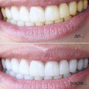 Натуральне відбілювання зубів