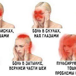 Про що говорить біль в різних частинах голови?