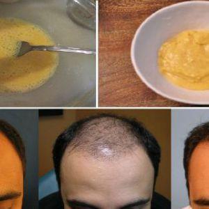 Він змішав банани і пиво, завдав на волосся - результати після 7 днів дивовижні!