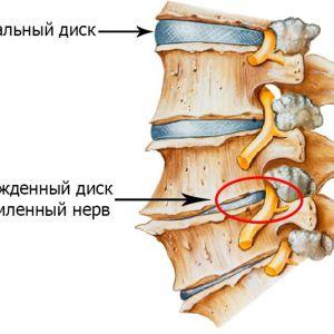 Остеохондроз шийного відділу, вправи для профілактики