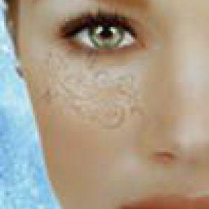 Від жирної їжі лущитися шкіра навколо очей