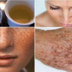 Відбілити шкіру і очистіть її від веснянок і темних плям за допомогою цього саморобного лосьйону