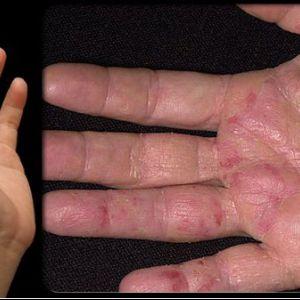 Перші симптоми раку з`являються на наших руках - не ігноруйте їх!