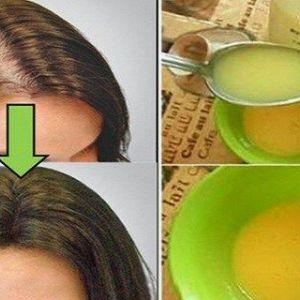 Нехай всі лікарі удівятсяв даній статті рецепт кошти, за допомогою якого ваше волосся буде рости, як божевільні!