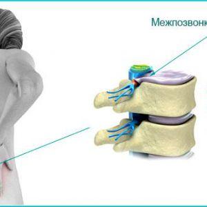 Прості вправи для здорового хребта. Міжхребцева грижа