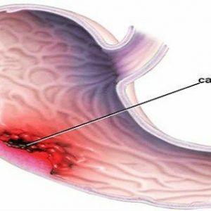 Рак шлунка - тихий вбивця: найбільш поширені симптоми (не ігноруйте їх)