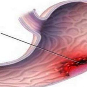 Рак шлунка: тихий вбивця - найбільш поширені симптоми (не ігноруйте їх)