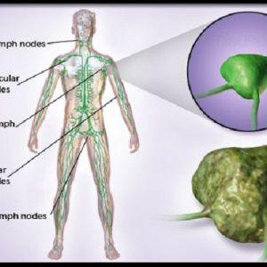 Ракові клітини гинуть, якщо ви вживаєте ці 6 продуктів!