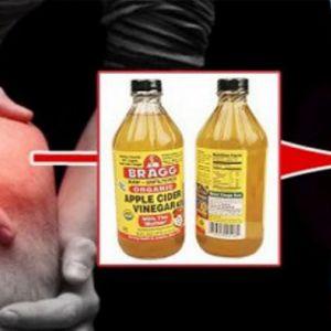Рецепт лікування артриту і болі в суглобах за допомогою яблучного оцту передавався поколіннями