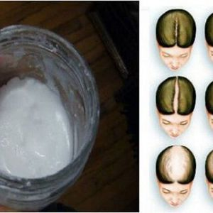 Шампунь з харчової соди: чи змусить рости ваше волосся набагато швидше.