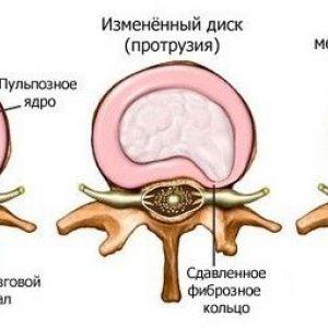 Спинна грижа - основні симптоми, причини і лікування