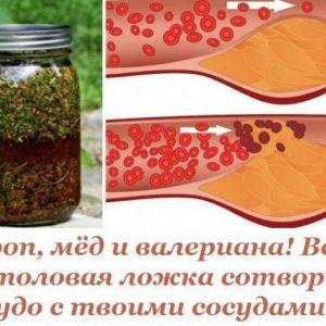 Кріп, мед і валеріана! Всього 1 столова ложка створить диво з твоїми судинами