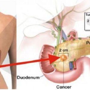 Вживання всього 2-х шматочків цього продукту збільшує ризик раку підшлункової залози!