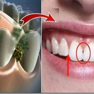 Усуньте неприємний запах з рота за 5 хвилин! Це засіб знищить всі бактерії, які викликають неприємний запах з рота!