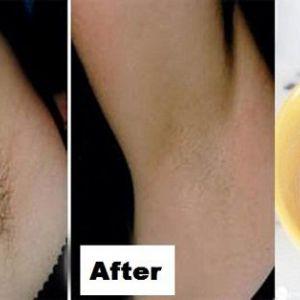Вам знадобиться всього лише 2 інгредієнта і 2 хвилини, щоб позбутися від волосся під пахвами назавжди!