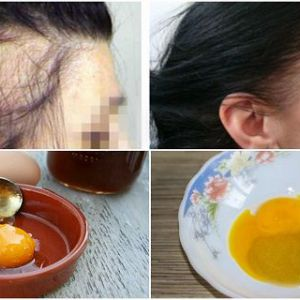 Чарівний рецепт для швидкого росту волосся! Всього 3 інгредієнта!